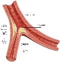 Open Cardiovascular disease