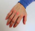 Open Dermatitis