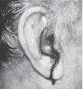 Open Head injury